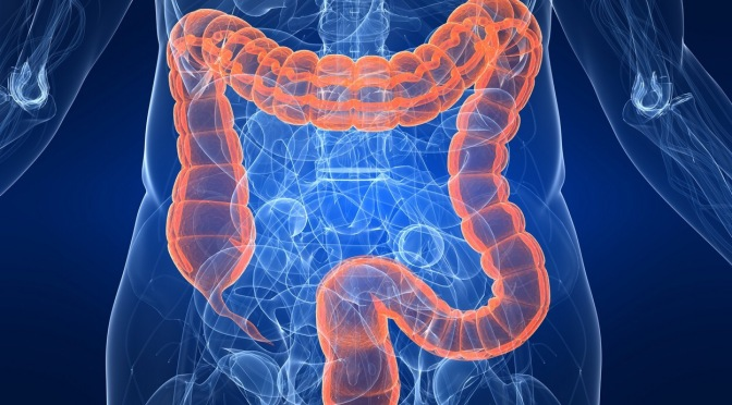 Colon Cancer: What you need to know.
